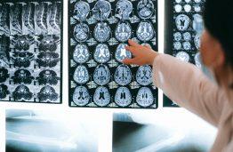 Lietuvos mokslininkų sukurtas algoritmas beveik 100 proc. tikslumu galės nustatyti Alzheimerio ligos pradžią